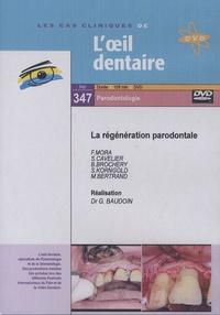Gérard Baudoin - La régénération parodontale. 1 DVD