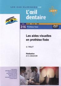 G Tirlet et Gérard Baudoin - Les aides visuelles en prothése fixée. 1 DVD