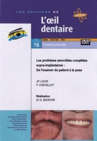 Jean-Paul Louis et F Chevalley - Les prothèses amovibles complètes supra-implantaires : de l'examen du patient à la pose. 1 DVD
