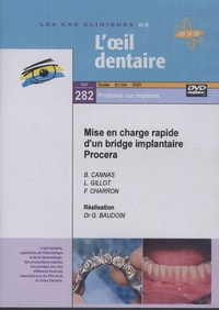 Gérard Baudoin - Mise en charge rapide d'un bridge implantaire Procera. 1 DVD