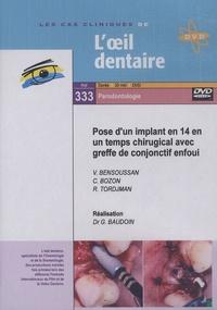 Gérard Baudoin - Pose d'un implant en 14 en un temps chirugical avec greffe de conjonctif enfoui. 1 DVD
