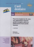 Gérard Baudoin - Pose d'un implant en 43, avec une régénération osseuse guidée autogène, grâce au prélèvement d'une carotte osseuse. 1 DVD