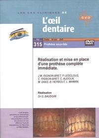 Jean-Marie Rignon-Bret et Philippe Lesclous - Réalisation et mise en place d'une prothèse complète immédiate. 1 DVD