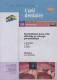 Gérard Baudoin - Reconstitution d'une crête effondrée en chirurgie pré-prothétique. 1 DVD