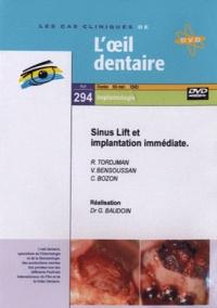 R Tordjman et V Bensoussan - Sinus Lift et implantation immédiate. 1 DVD
