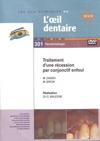 Marc Danan et Monique Brion - Traitement d'une récession par conjonctif enfoui. 1 DVD
