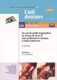 Hadi Antoun et Gérard Baudoin - Un cas de greffe d'apposition au niveau de 36 et 37 avec prélèvement ramique, à l'aide d'ultra-son. 1 DVD