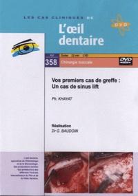 Philippe Khayat et Gérard Baudoin - Vos premiers cas de greffe : un cas de sinus lift. 1 DVD