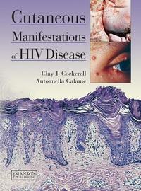Clay J Cockerell - Cutaneous Manifestations of HIV Disease.
