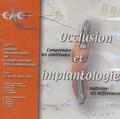 CNO - Occlusion et implantologie - Comprendre les similitudes, Maîtriser les différences, CD-Rom.