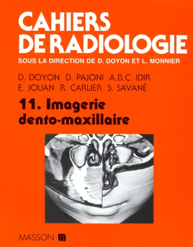 D Doyon et  Collectif - Cahiers de radiologie Tome 11 - Imagerie dento-maxillaire.