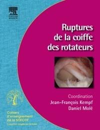Daniel Molé et Jean-François Kempf - Ruptures de la coiffe des rotateurs.