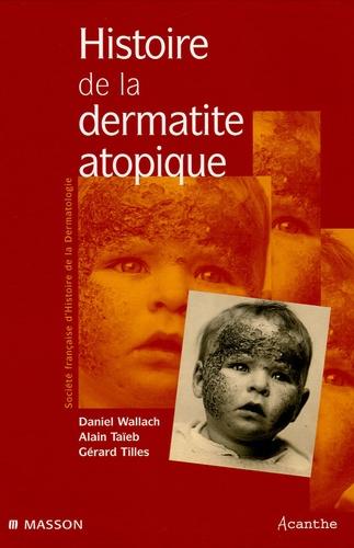 Daniel Wallach et Alain Taieb - Histoire de la dermatite atopique.