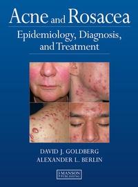 David J Goldberg - Acne and Rosacea - Epidemiology, Diagnosis and Treatment.