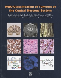 David-N Louis et Hiroko Ohgaki - WHO Classification of Tumours of the Central Nervous System.