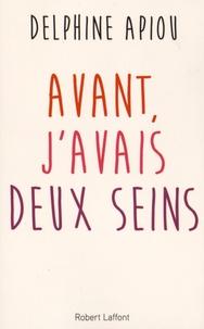 Avant, j'avais deux seins - Delphine Apiou | Showmesound.org