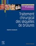 Delphine Voulliaume - Traitement chirurgical des séquelles des brûlures.