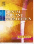 Dental Implant Prosthetics.