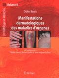 Didier Bessis - Manifestations dermatologiques des maladies d'organes.