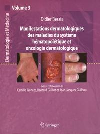 Didier Bessis - Manifestations dermatologiques des maladies du système hématopoïétique et oncologie dermatologique.