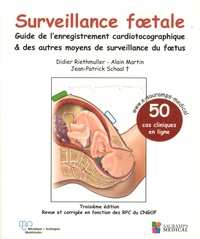 Didier Riethmuller et Alain Martin - Surveillance foetale - Guide de l'enregistrement cardiotocographique & des autres moyens de surveillance du foetus.