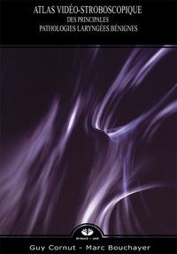 Atlas vidéo-stroboscopique des principales pathologies laryngées bénignes.pdf