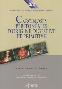 Deedr.fr Carcinoses péritonéales d'origine digestive et primitive Image
