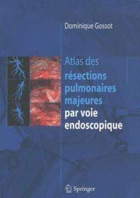 Atlas des résections pulmonaires majeures par voie endoscopique.pdf