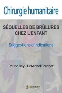 E/ brachet m Bey - Chirurgie humanitaire. sequelles de brulures chez l enfant.