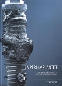 Eduardo Anitua Aldecoa - La péri implantite - Une nouvelle approche de la prévention et de son traitement.