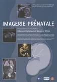 Eléonore Blondiaux et Marianne Alison - Imagerie prénatale.