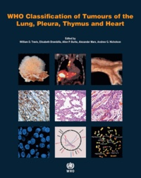 Elisabeth Brambilla et William-D Travis - Who Classification of Tumours of the Lung, Pleura, Thymus and Heart.