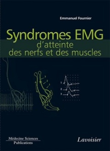 Syndromes EMG d'atteinte des nerfs et des muscles - Format PDF - 9782257705624 - 69,00 €