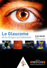 Eric Sellem - Le glaucome - De la clinique au traitement.