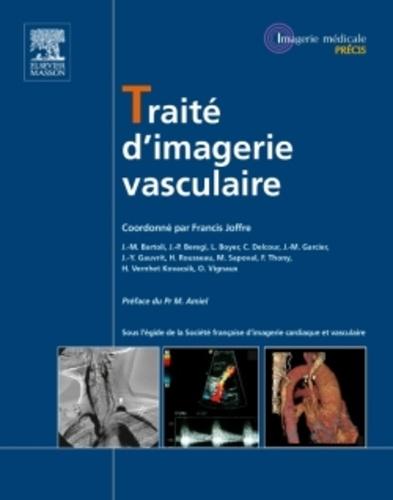 Francis Joffre - Traité d'imagerie vasculaire.