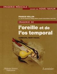 Francis Veillon - Imagerie de l'oreille et de l'os temporal - Tome 4, Tumeurs, nerf facial.