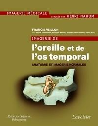 Francis Veillon - Imagerie de l'oreille et de l'os temporal - Tome 1, Anatomie et imagerie normales.