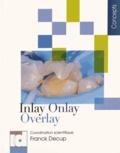 Franck Decup - Inlay, Onlay, Overlay.