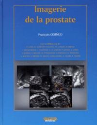 Imagerie de la prostate.pdf