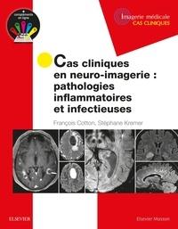 Cas cliniques en neuro-imagerie - Pathologies inflammatoires et infectieuses.pdf