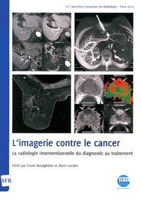 Frank Boudghène et Alain Luciani - L'imagerie contre le cancer - La radiologie interventionnelle du diagnostic au traitement. 1 Cédérom