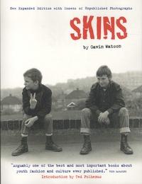 Gavin Watson - Skins.