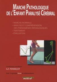 Marche Pathologique de lEnfant Paralysé Cérébral - Marche normale, Analyse et compréhension des phénomènes pathologiques, Traitement, Evaluation.pdf