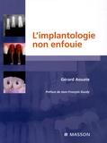 Gérard Aouate - L'implantologie non enfouie.