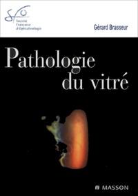 Gérard Brasseur - Pathologie du vitré.