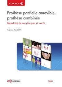 Gérard Jourda - Prothèse partielle amovible, prothèse combinée - Tome 2, Répertoire de cas cliniques et tracés.
