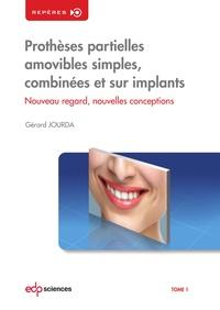 Gérard Jourda - Prothèses partielles amovibles simples, combinées et sur implants - Tome 1, Nouveau regard, nouvelles conceptions.
