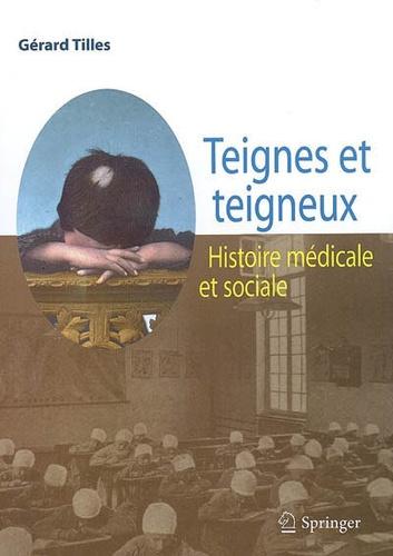 Gérard Tilles - Teignes et teigneux.