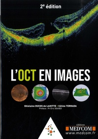 Ghislaine Ducos de Lahitte et Céline Terrada - L'OCT en images.