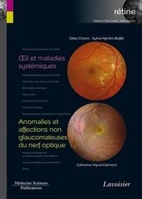 Gilles Chaine et Sylvia Nghiêm-Buffet - Rétine - Volume 5, Oeil et maladies systémiques ; Anomalies et affections non glaucomateuses du nerf optique.
